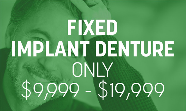 special offer on fixed implant denture