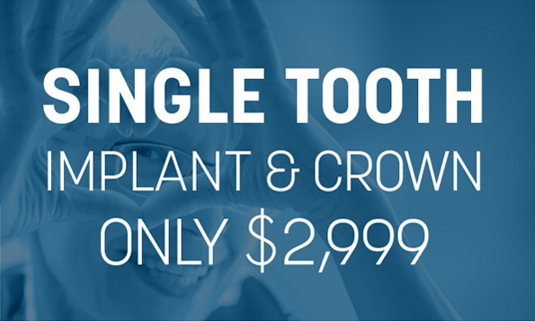 single tooth implant and crown special offer
