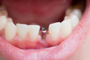 mouth with dental implant screw during dental implants services in Upper Kirby Texas