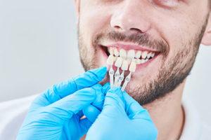 dental veneers TX dentist holding up dental veneers to patient's teeth during dental veneer services tx